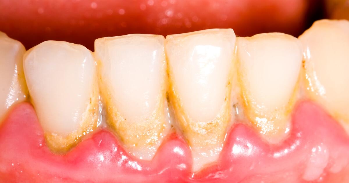 Zęby, kamień nazębny, cukrzyca