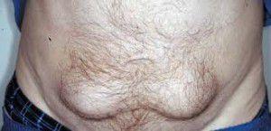 Lipohipertrofia - zgrubienia tkanki tłuszczowej