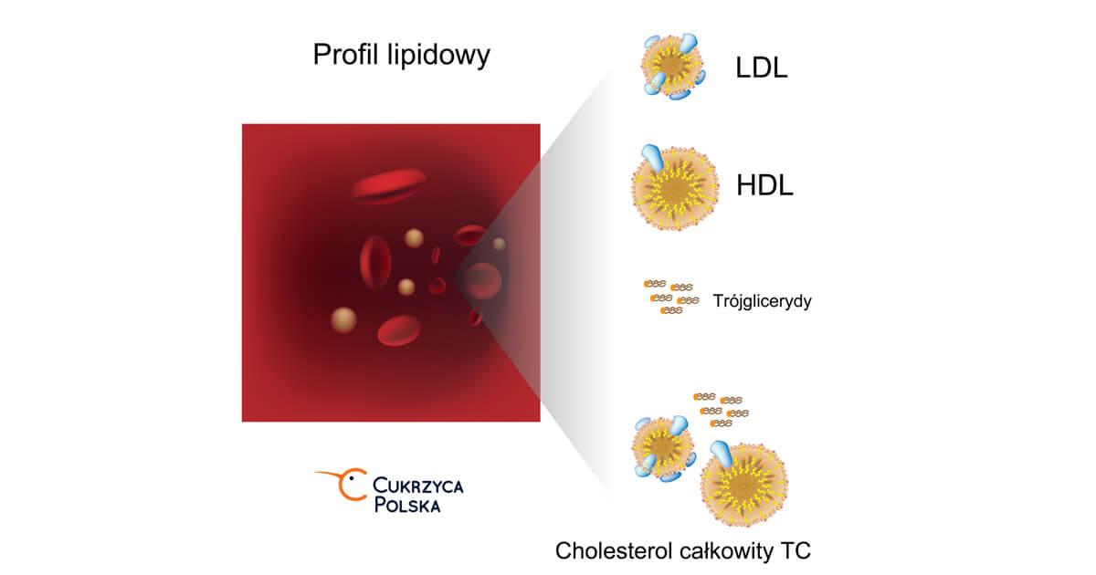 Cholesterol_cukrzyca