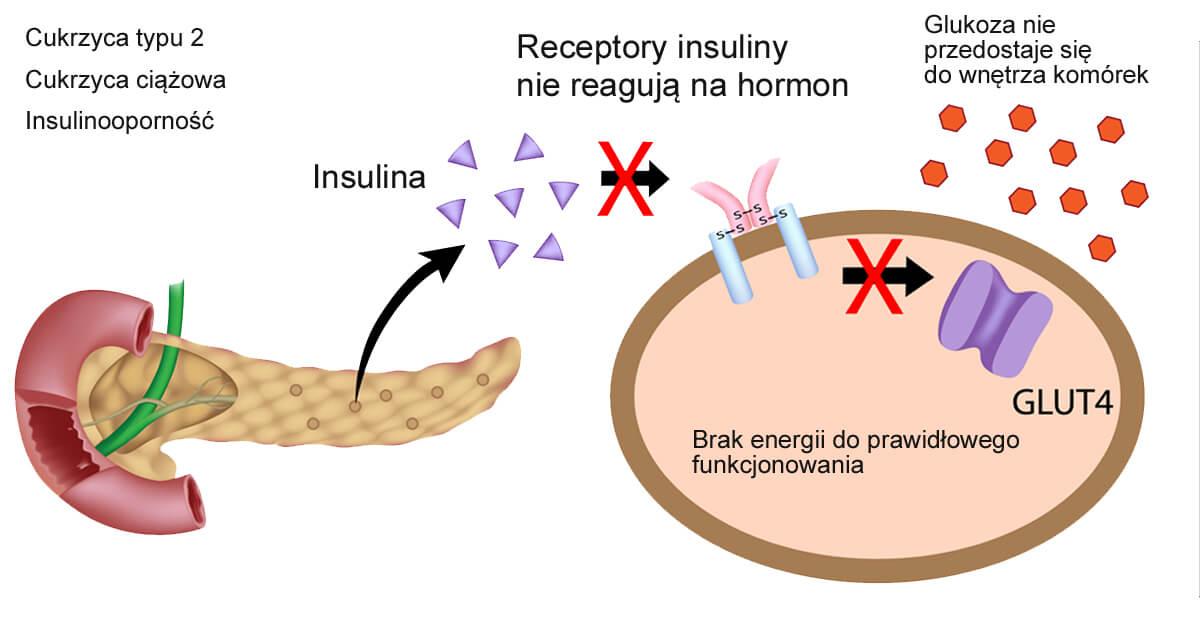 Trzustka prdukuje insulinę, ale komórki nie są w stanie z niej korzystać