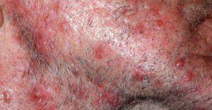 Fugówka cukrzyca choroby skóry