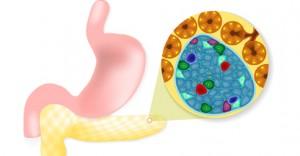 Wspólne wysiłki licznej grupy badaczy z całego świata rzucają nowe światło na proces niszczenia komórek wysp trzustkowych odpowiedzialnych za produkcję insuliny, i tym samym za rozwój cukrzycy typu 1. Grupie naukowców z UMass Medical School udało się wyizolować komórki odpornościowe niszczące komórki produkujące insulinę u dziewięciu dawców z cukrzycą typu 1, jest to największa do tej pory zbiorowość obiektów badań. Celem było zrozumienie działania mechanizmu niszczącego komórki beta trzustki i zapobieganie temu procesowi.