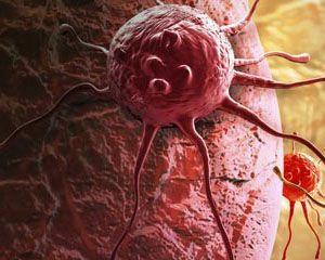 Rak atakuje komórki organizmu w cukrzycy