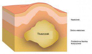 Lipohipertrofia to przerost tkanki tłuszczowej