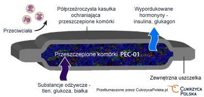 Przeszczep kapsułkowanych wysp trzustkowych wszedł w fazę badań klinicznych
