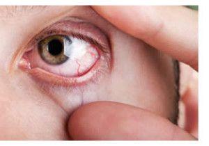 Retinopatia cukrzycowa charakteryzuje się między innymi przerostem naczyń krwionośnych.