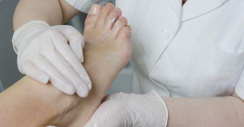 Polineuropatia cukrzycowa w stopach