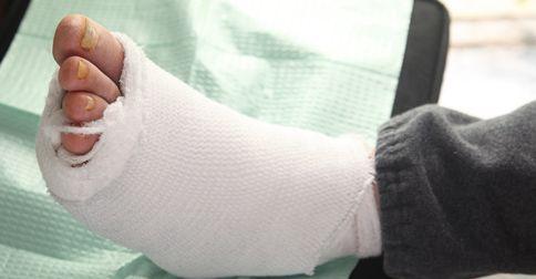 Zlamana noga u diabetyka