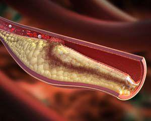 Alirocumab skutecznie obniża cholesterol LDL u diabetyków