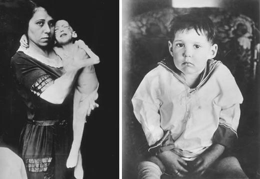 Dziecko cukrzyca wynalezienie insuliny